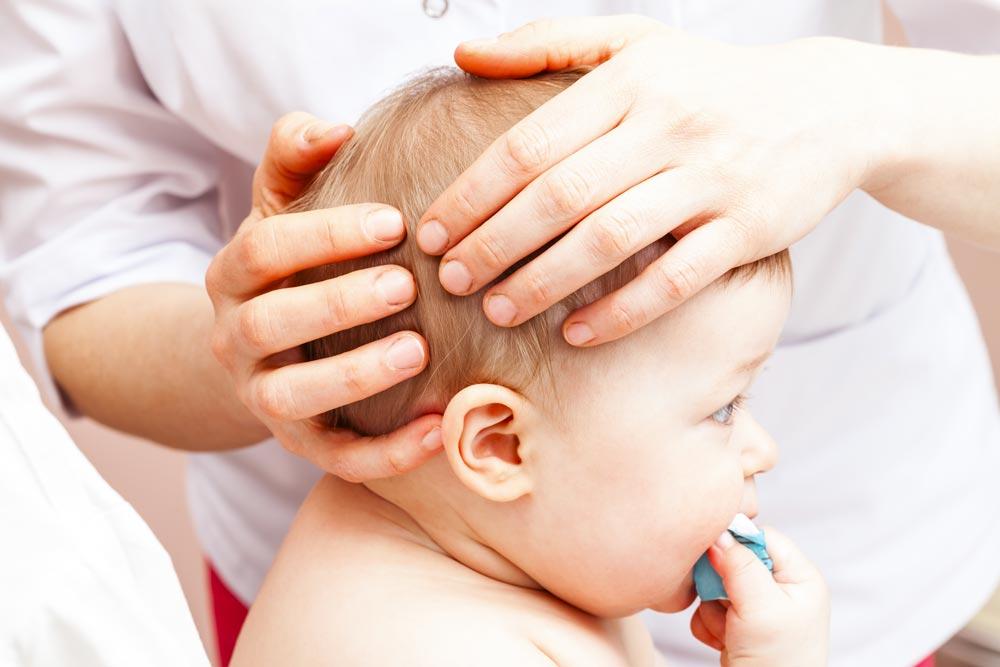 osteopatia para plagiocefalia